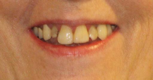 Teeth 4 Before